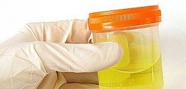 Urine Drug Testing